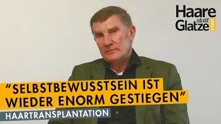 Pensionist vorher/nachher: Haartransplantation der Geheimratsecken