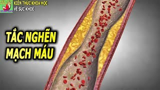 Bệnh tắc nghẽn mạch máu nên ăn thực phẩm gì để làm sạch mạch máu
