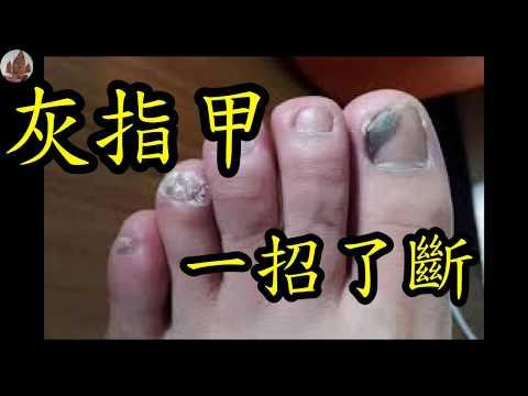 久治不愈的「灰指甲」,原來只要1個小處方,就能輕鬆搞定!