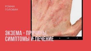 видео Экзема - Симптомы и лечение народными средствами в домашних условиях