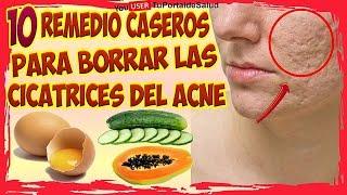 Como Eliminar las Cicatrices del Acné - 10 Remedios para Eliminar las Cicatrices del Acné