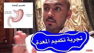 سناب هيثم تجربة عملية التكميم قص المعدة في الأردن Youtube