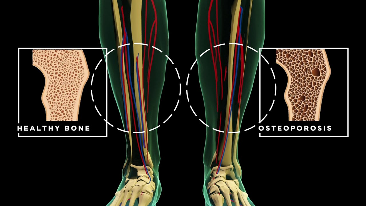 Screening Tech Explains What Life Line Screening Tests For And Where in the Body