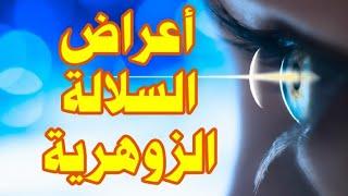 السلالة الزوهرية وأعراضها مع الراقي أحمد السوسي من الرباط0661990268\0641182991