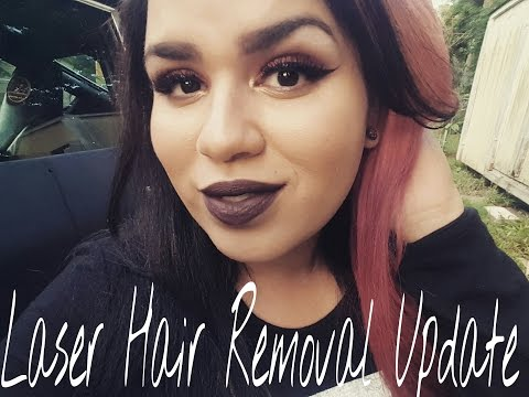 Laser Hair Removal and mini update.