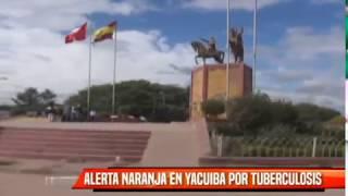 ALERTA NARANJA EN YACUIBA POR TUBERCULOSIS