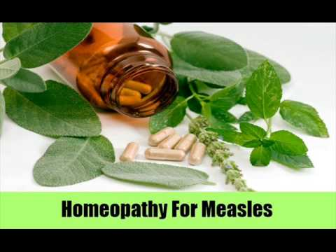 9 Best Natural Treatments For Measles