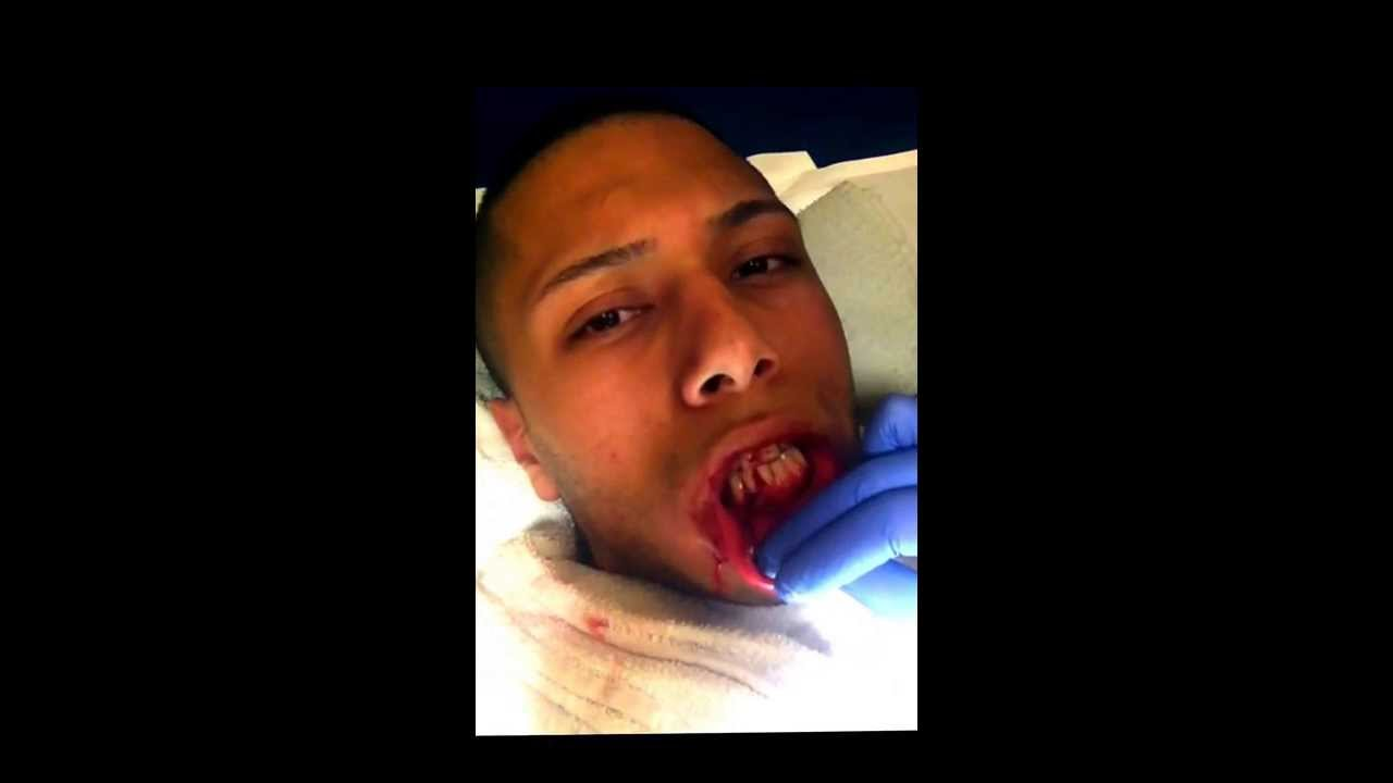 how to fix a broken jaw