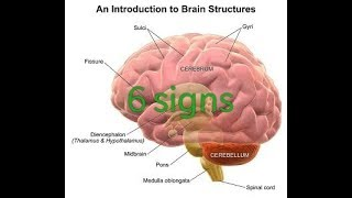 6 signs or symptoms of cerebral edema
