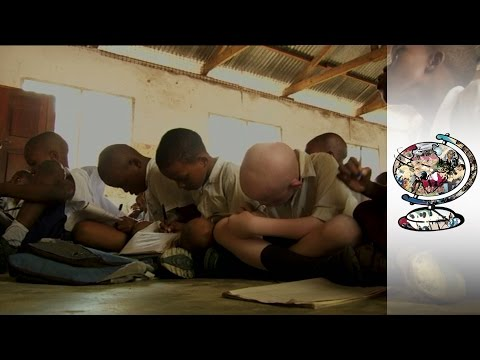 Tanzanian Albinos are Treated Like Animals in Their Own Country