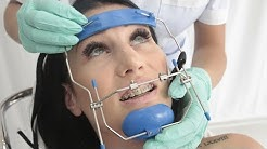 Kate's Orthodontic Headgear Facemask