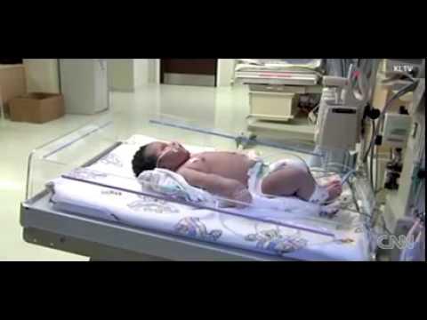 Em bé mới sinh đã nặng 7,25 kg