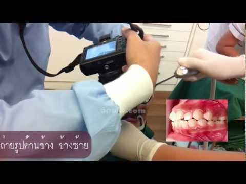 แอบดูหมอจัดฟันถ่ายรูปคนไข้ดัดฟัน