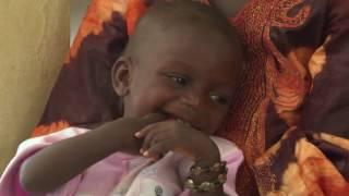Sénégal: Dépistage communautaire, sensibilisation pour mettre fin à la malnutrition chez les enfants