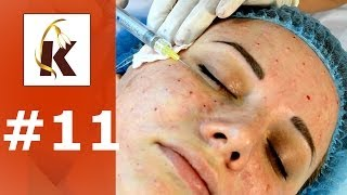Биоревитализация лица гиалуроновой кислотой, уколы красоты, до и после - понятная косметология