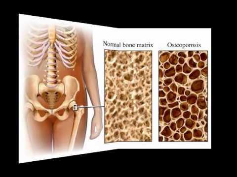 Bone remodeling (Bob and Claude)