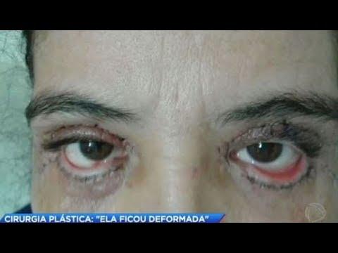 Mulher fica deformada após fazer cirurgia plástica nos olhos