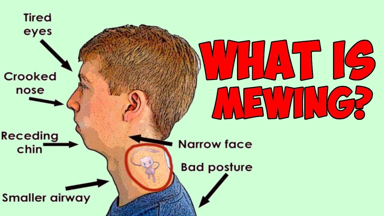What is MEWING? How To Mew And How It Can Change Your Face