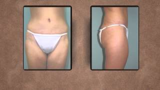 Dr Deason Dunagan discusses the Body Contouring procedure in Huntsville with before & after pictures