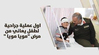 """د. نضال الخصاونة - اول عملية جراحية لطفل يعاني من مرض """"مويا مويا """""""