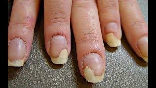 Подруга решила перестать делать маникюр в салоне, ведь от ее ногтей осталось только название