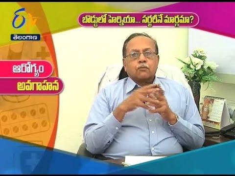 Umbilical Hernia Repair  Sukhibhava   7th January 2017   ETV Telangana by  ETV Telangana