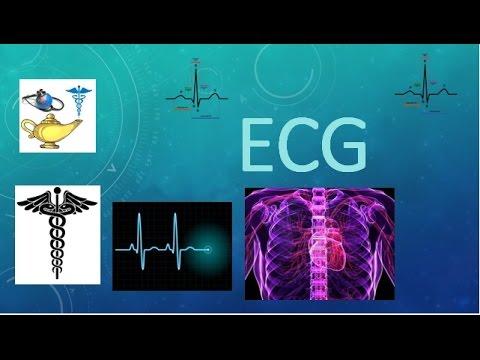 ELECTROCARDIOGRAMA (ECG) - APRENDIENDO FÁCIL