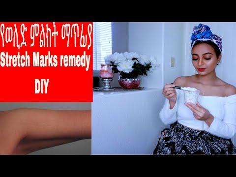 የወሊድ ምልክት ማጥፊያ Stretch mark removal DIY at home