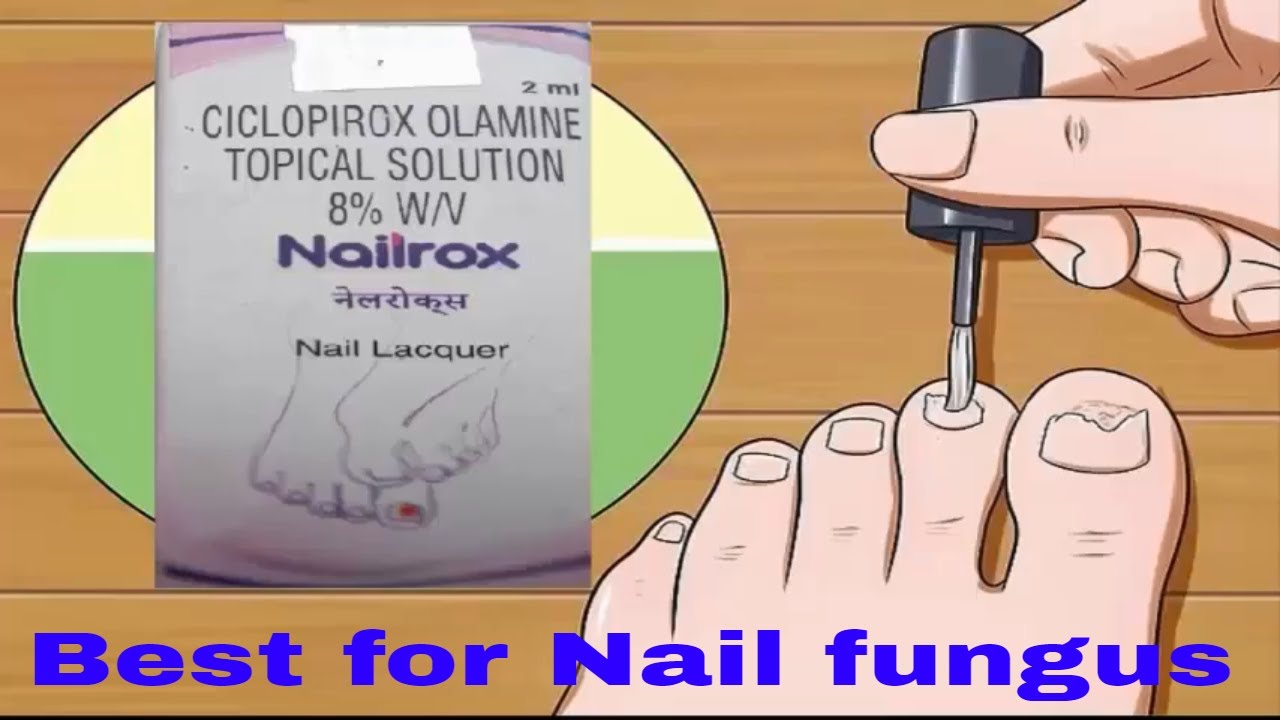 how to treat nail fungus at home - YouTube