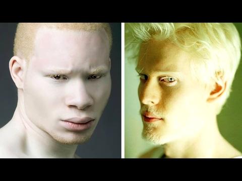 8 Persone Albinas Unico Al Mondo
