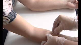 видео Анализы на туберкулез у детей и взрослых: какие сдавать, методы диагностики, где можно сдать
