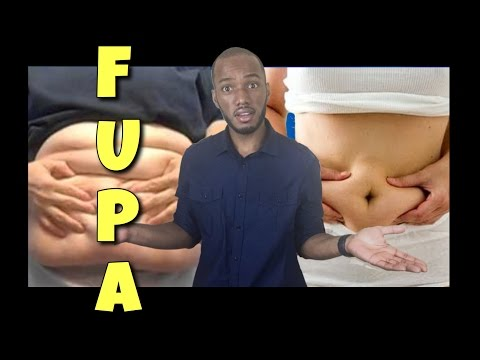 FUPA   How To Treat, Workout, Manage, and Eliminate Pannus