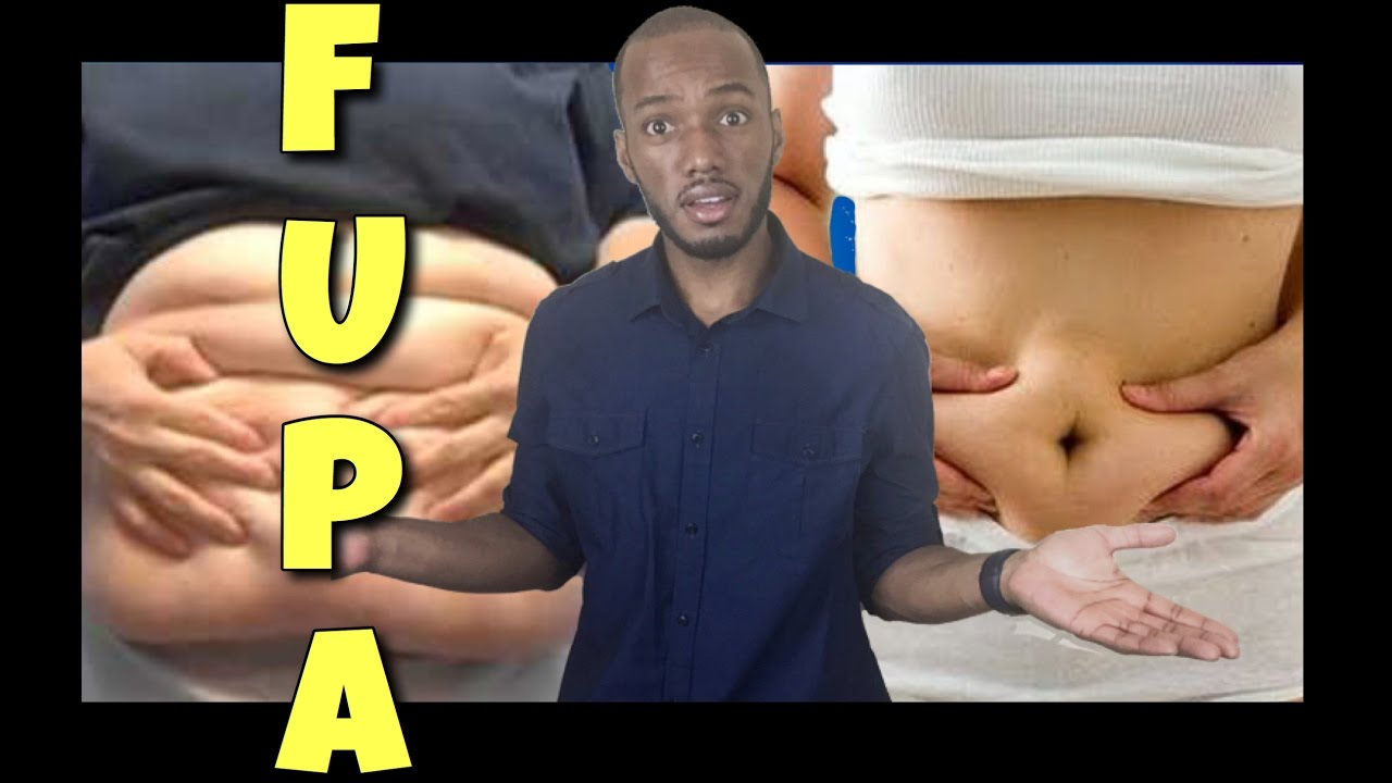 How To Get Rid of a Pannus Without Surgery? 12 Practical Ways