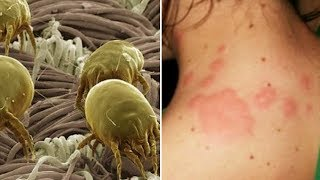 How To Get Rid of Scabies Mites Within 24 Hours
