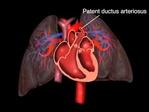Patent Ductus Arteriosus - YouTube