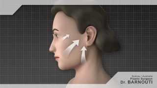 Face lift sydney | Plastic Surgery Sydney