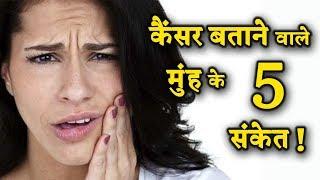 अगर मुंह के अंदर दिखें ये संकेत, तो आपको हो कैंसर हो सकता है ?    INDIA NEWS VIRAL