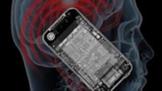 Fusión hombre y máquina el teléfono móvil del futuro se implantará en la cabeza