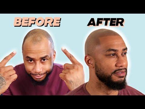 tj-gets-scalp-micropigmentation-in-new-york