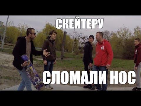 30-ти Летний скейт НАПАЛ на КОЛЯНА !