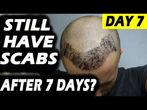 HAIR TRANSPLANT 7 DAYS (post operation) Istanbul, Turkey