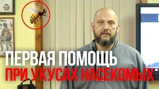 Укусы насекомых | Помощь при укусах насекомых | Алгоритм первой помощи при укусах насекомых