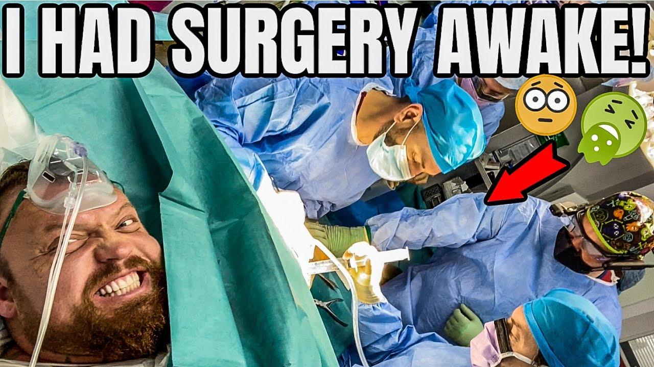 I Had Surgery AWAKE! | Detached my bicep