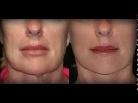 facelift without surgery singapore facelift without surgery exercises biz