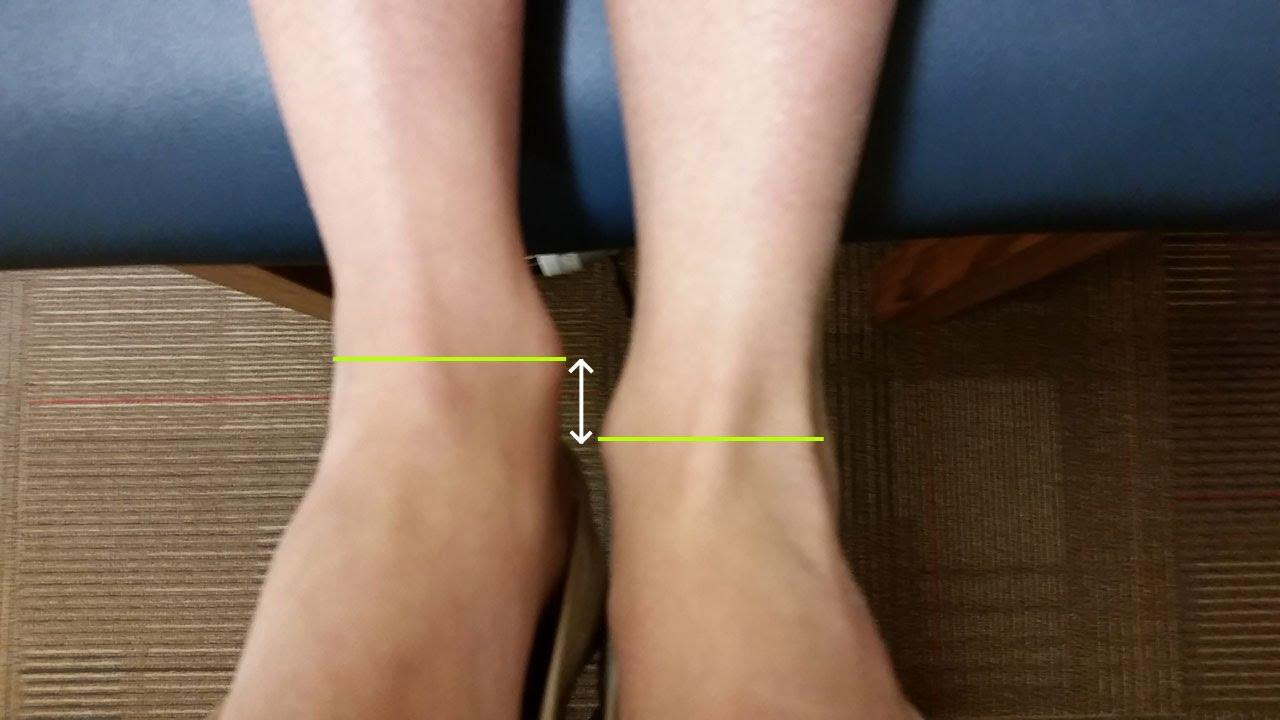 Leg Length Discrepancy | RunSmartOnline.com - YouTube