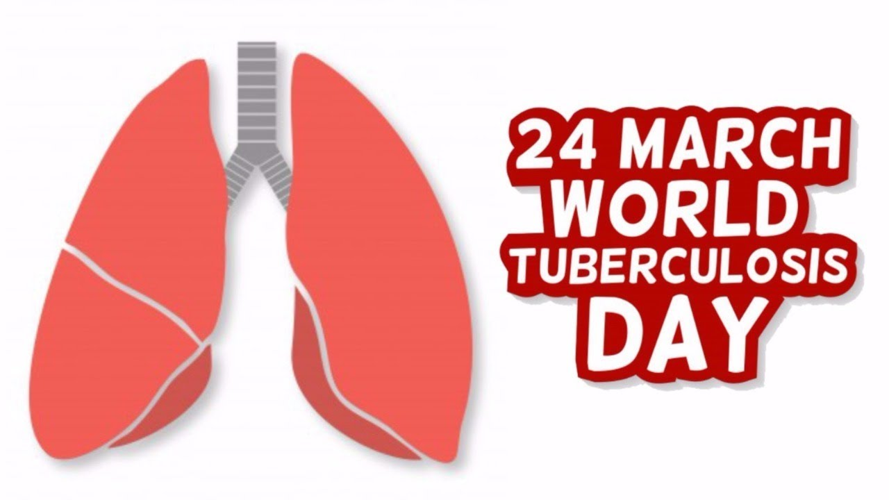 World TB Day : Fight against TB goes beyond treatment of the disease