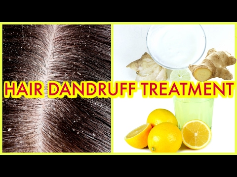 How To Clear DANDRUFF & ITCHY SCALP Treatment Remedy | SuperPrincessjo