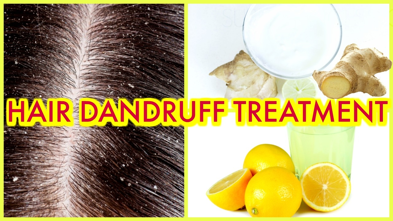 How to Prevent and Treat Dandruff recommendations