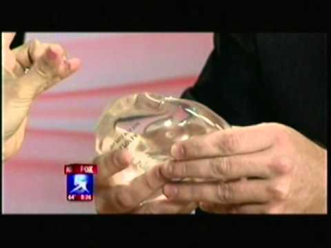 Silicone Breast Implants and its Safety - Dr. Marin | Fox 5 San Diego