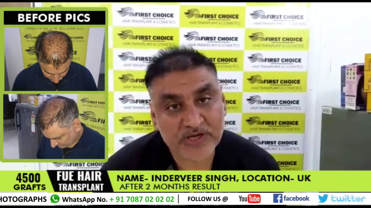 Hair Transplant in Ludhiana - Patient's reviews - results after 2
